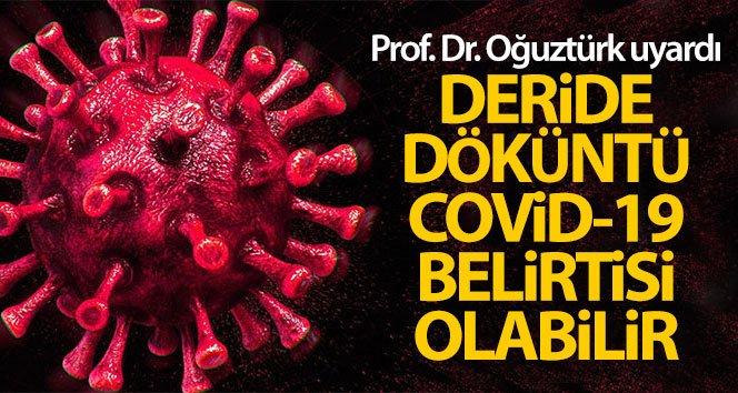 Prof. Dr. Oğuztürk uyardı: 'Deride döküntü Covid-19 belirtisi olabilir'
